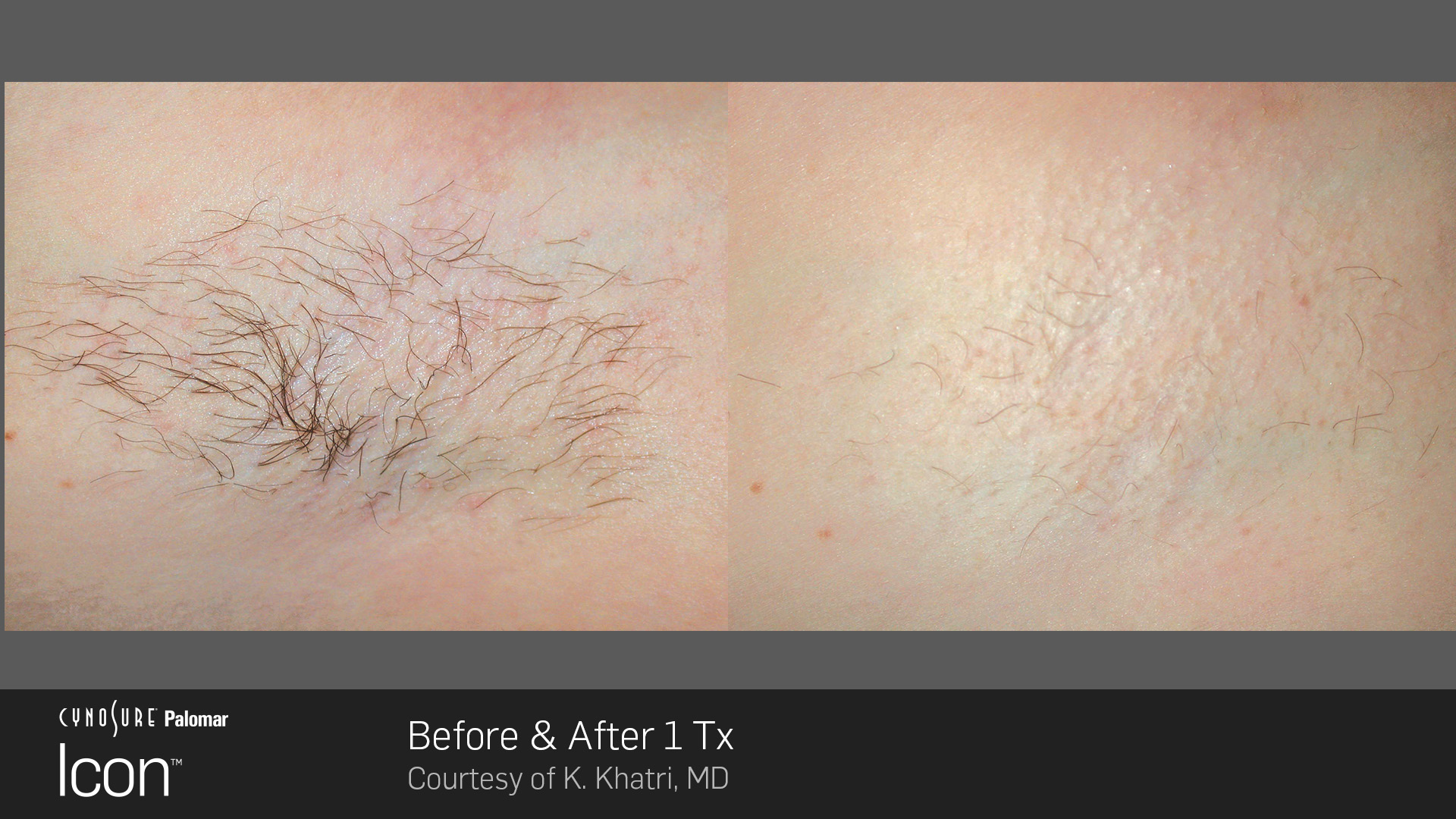 Permanent Hair Reduction - Before and After