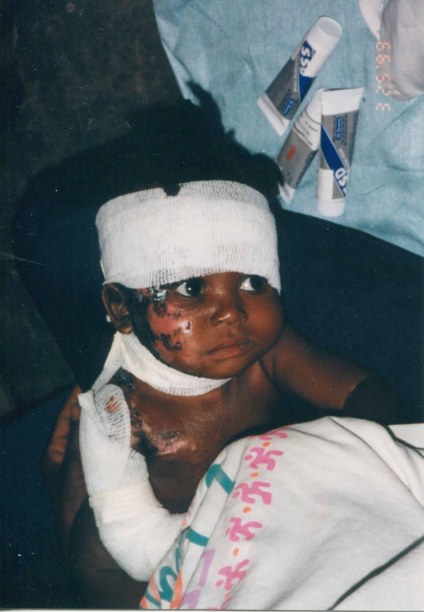 1999_Infant_burn_patient_p_DrMM_image28.jpg