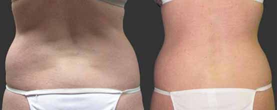 exilis-back-before-and-after.jpg