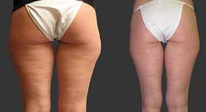 exilis-buttocks-before-and-after.jpg