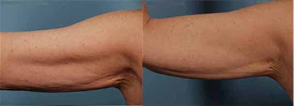 exilis-saggy-arm-before-and-after.jpg