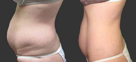 exilis-tummy-before-and-after.jpg